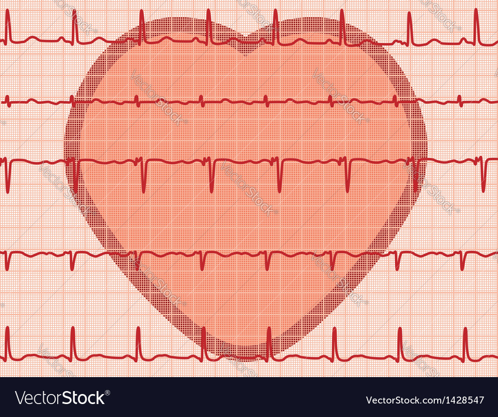 Heartbeat electrocardiogram vector | Price: 1 Credit (USD $1)
