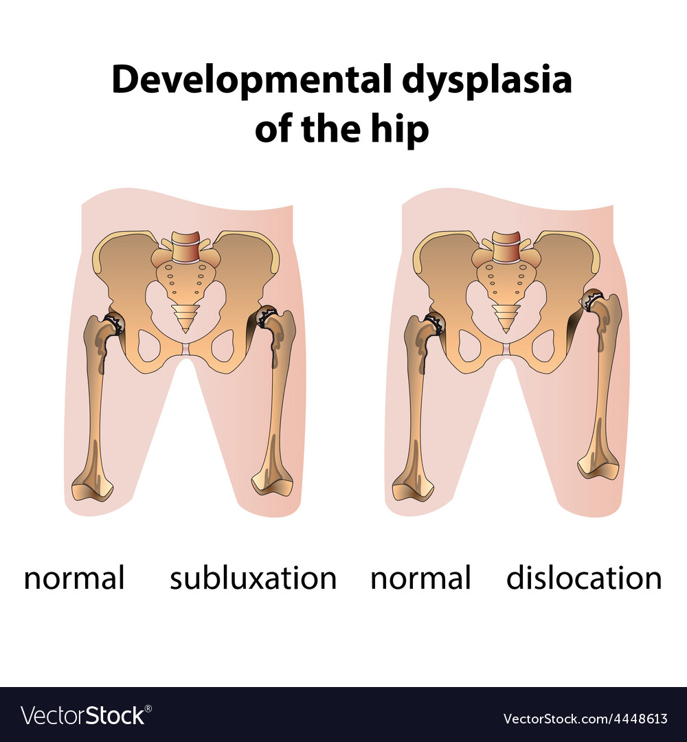 Dysplasia of the hip vector | Price: 1 Credit (USD $1)