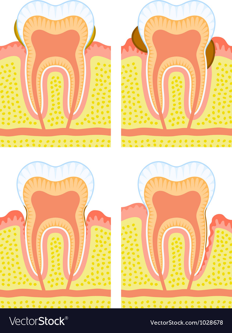 Internal structure of tooth vector | Price: 1 Credit (USD $1)