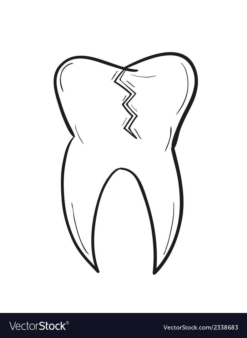Sketch of the tooth with defect vector | Price: 1 Credit (USD $1)