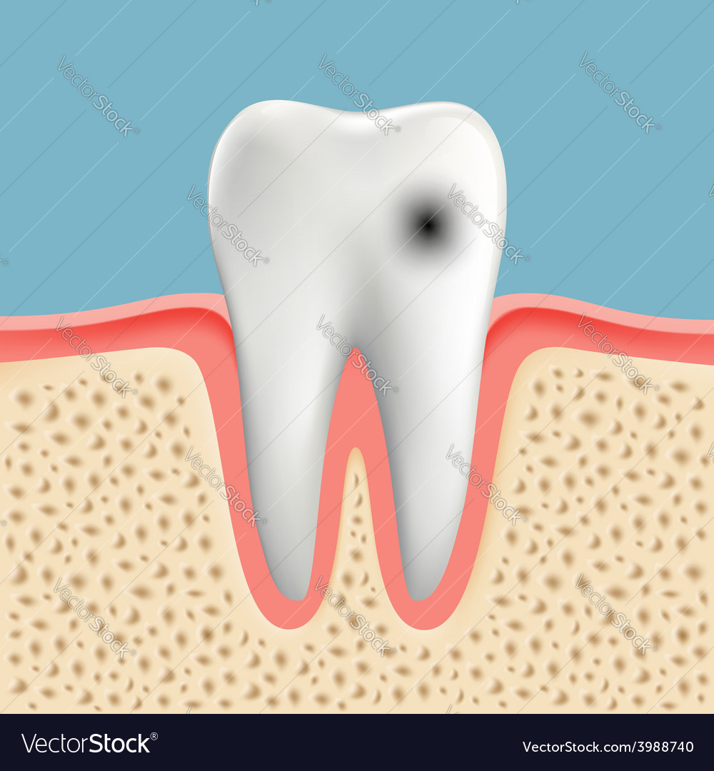 Image of a human tooth with caries vector | Price: 1 Credit (USD $1)