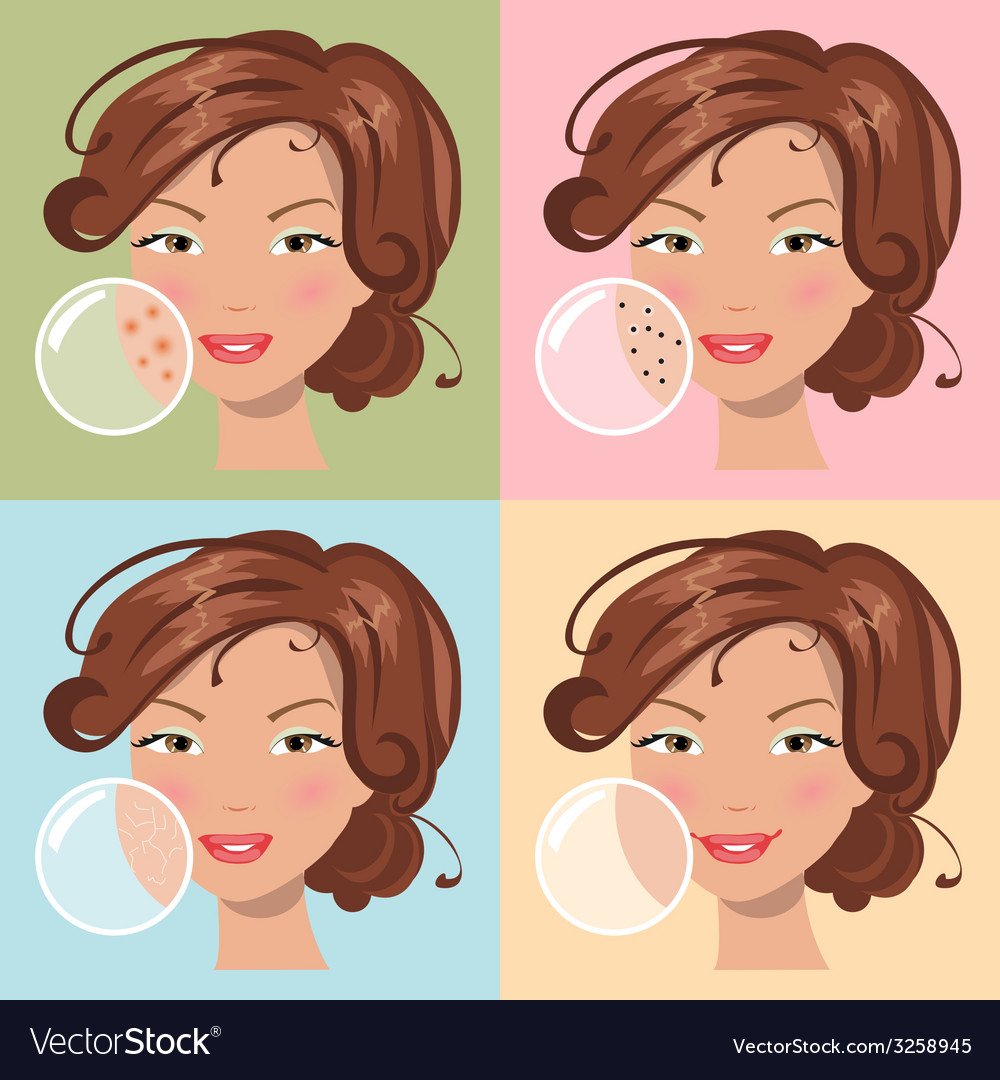 Different skin problems vector | Price: 1 Credit (USD $1)