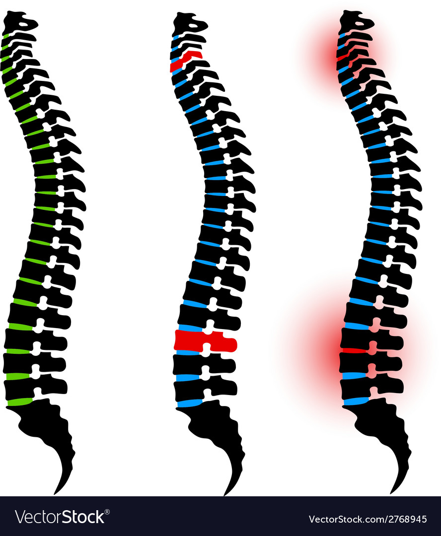 Human spine silhouettes vector | Price: 1 Credit (USD $1)