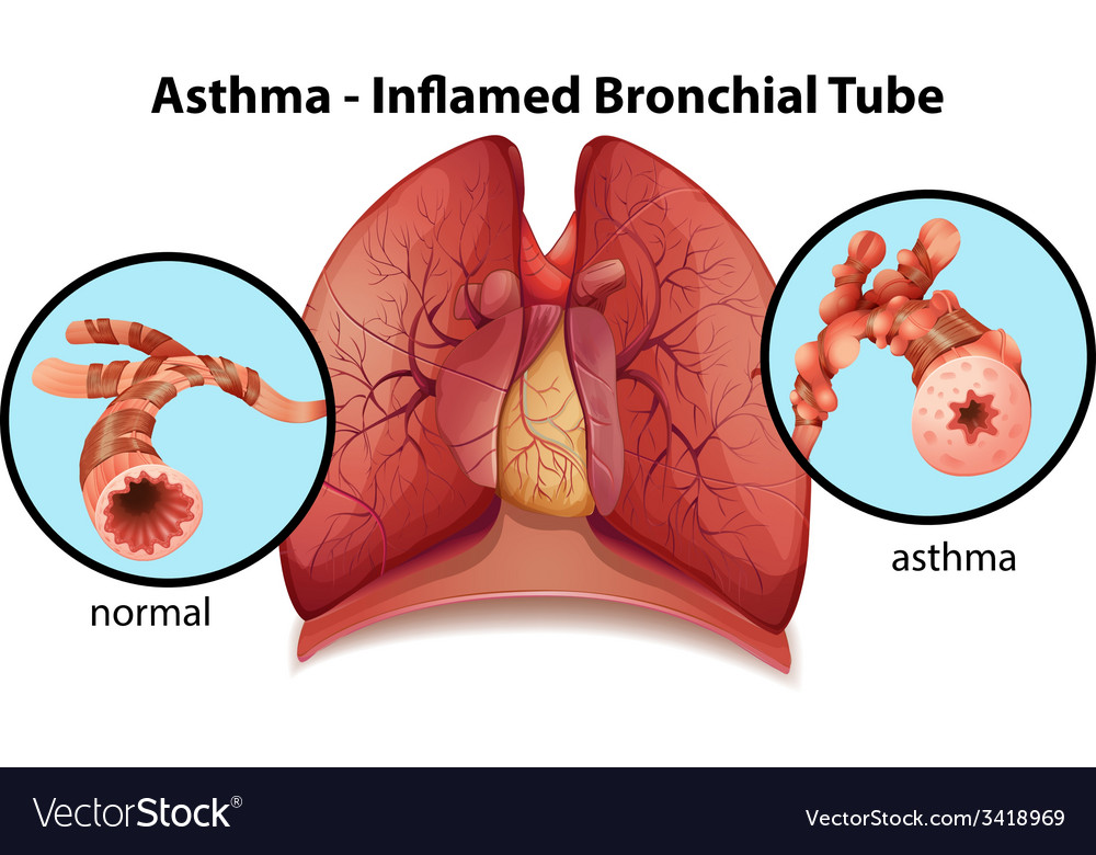 An asthma-inflamed bronchial tube vector   Price: 1 Credit (USD $1)