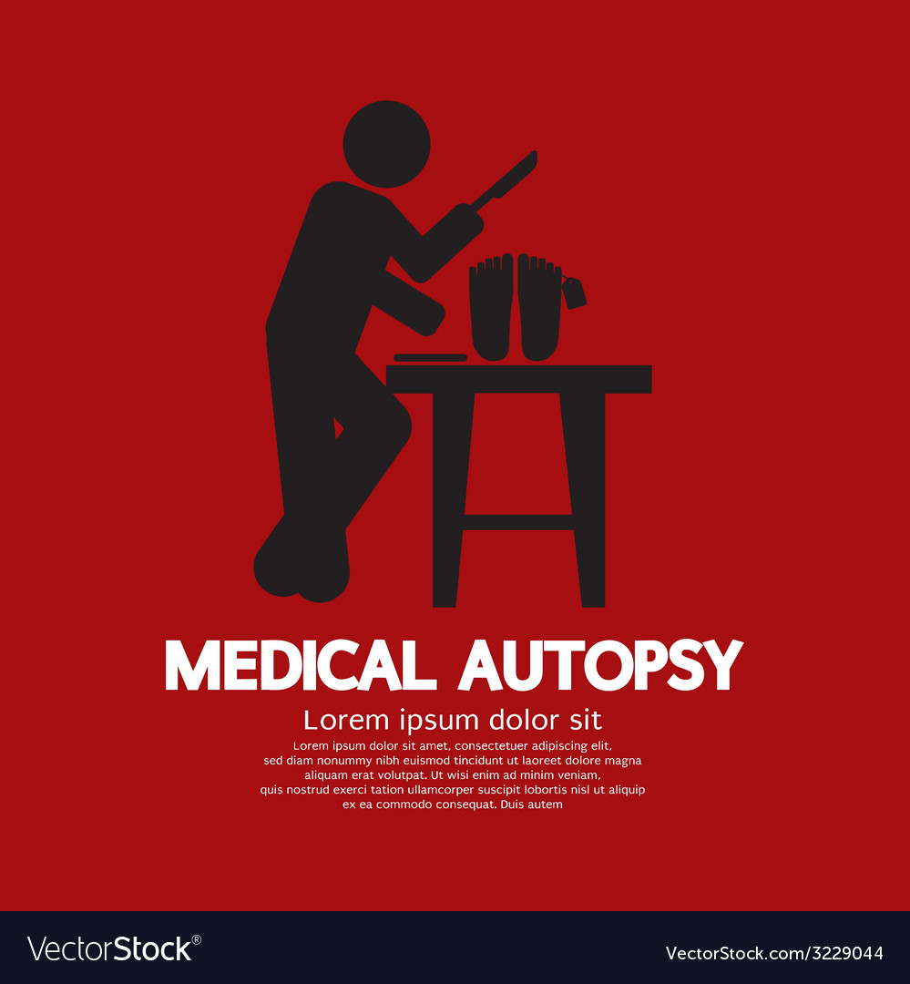 Medical autopsy graphic vector | Price: 1 Credit (USD $1)