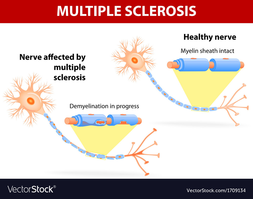 Nerve affected by multiple sclerosis vector | Price: 1 Credit (USD $1)