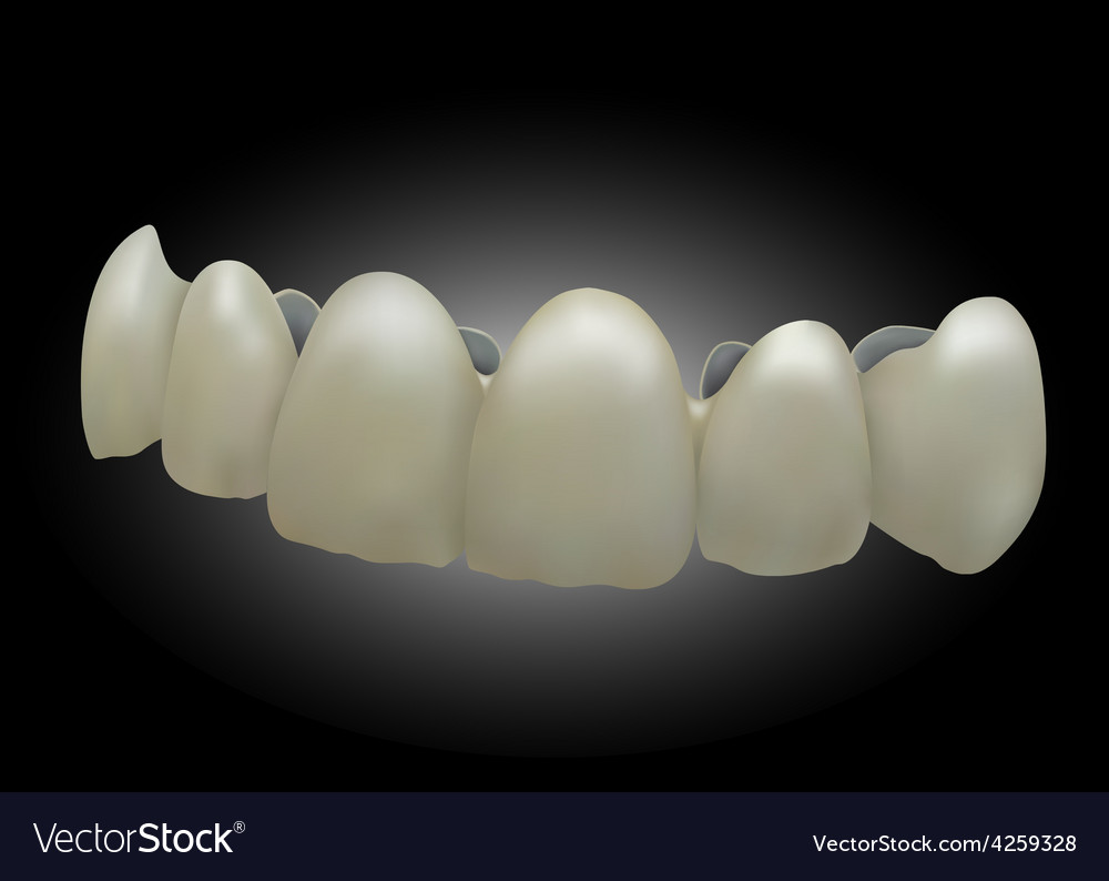 Front ceramic teetheps 10 vector | Price: 1 Credit (USD $1)