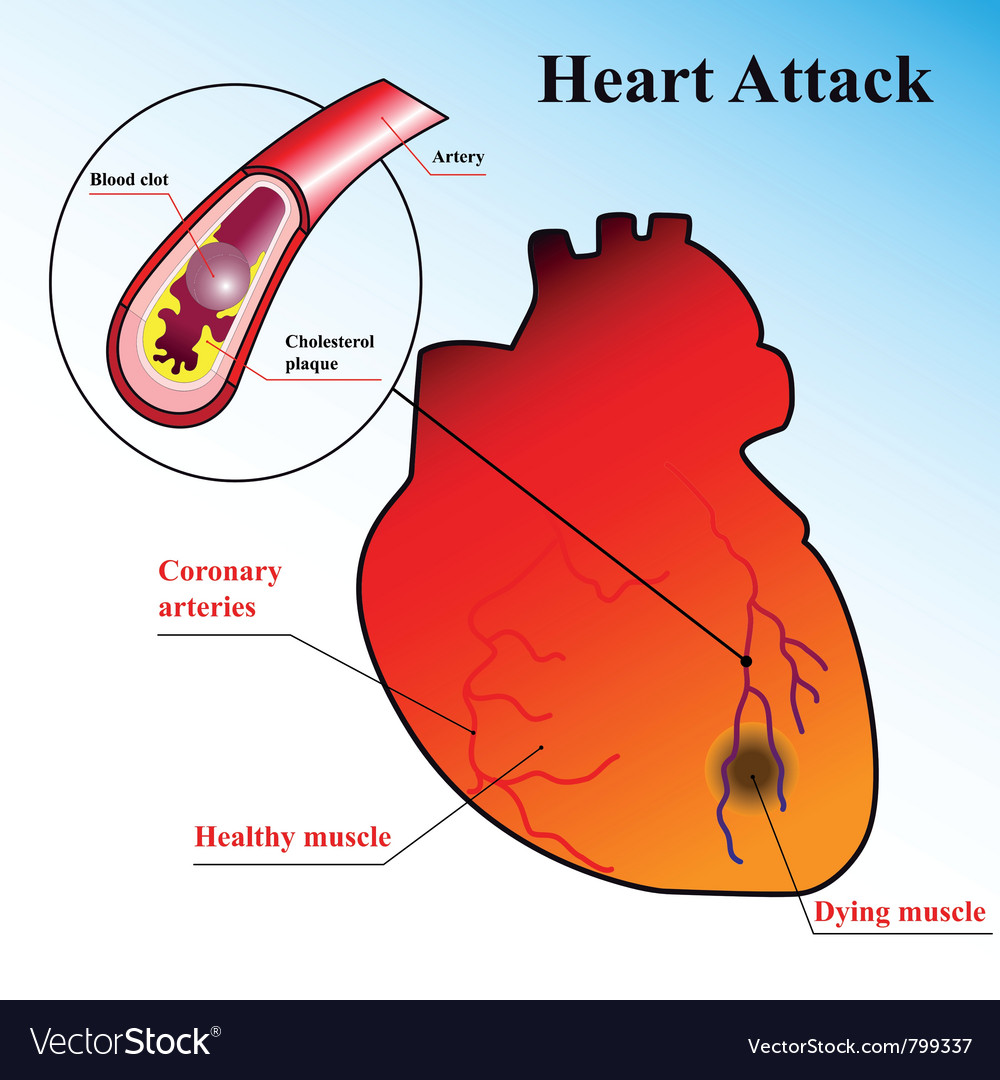 Schematic explanation of the process of heart atta vector | Price: 1 Credit (USD $1)