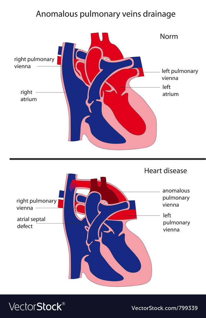 Anomalous pulmonary venous drainage heart disease vector | Price: 1 Credit (USD $1)