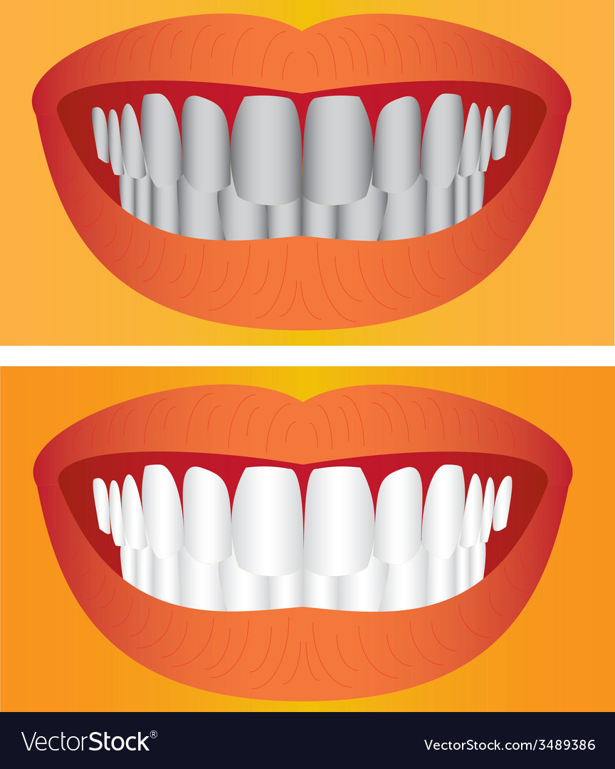 Care of teeth vector | Price: 1 Credit (USD $1)