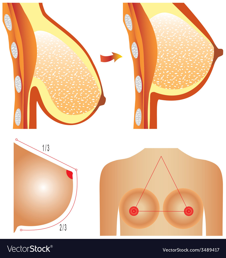 Plastic surgery of breast vector | Price: 1 Credit (USD $1)