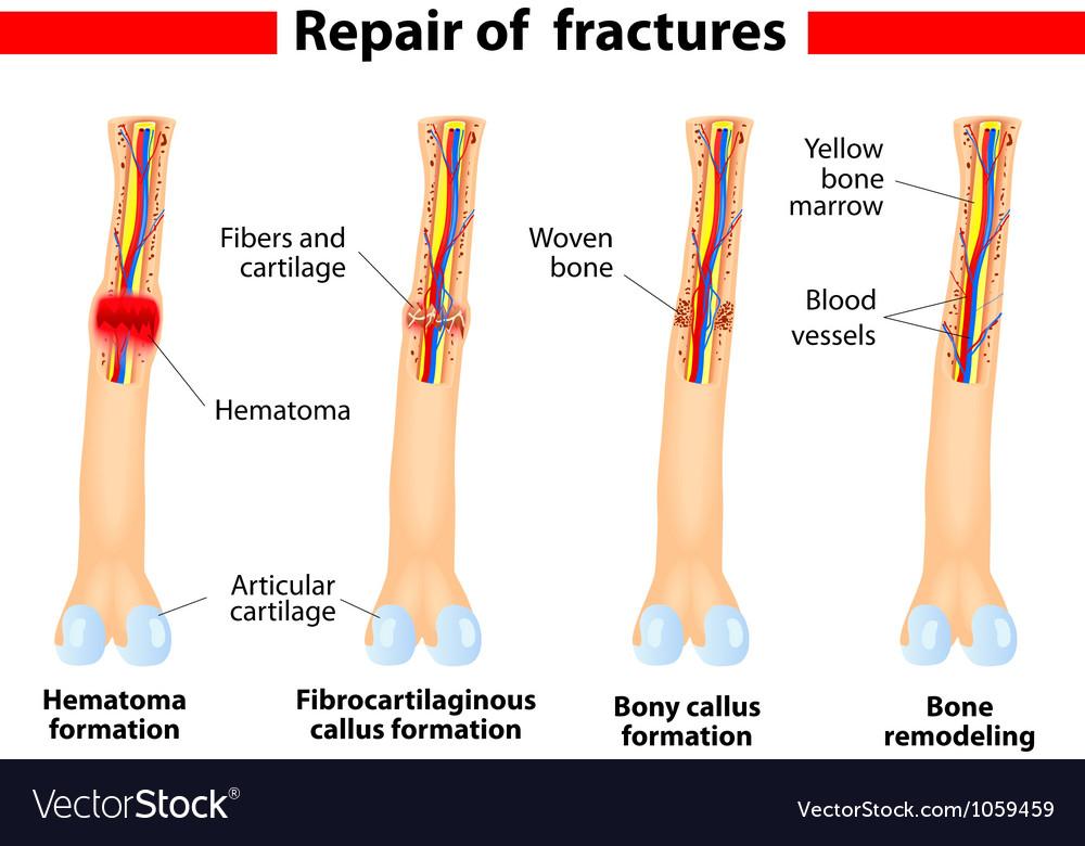 Bone fracture and repair vector | Price: 1 Credit (USD $1)
