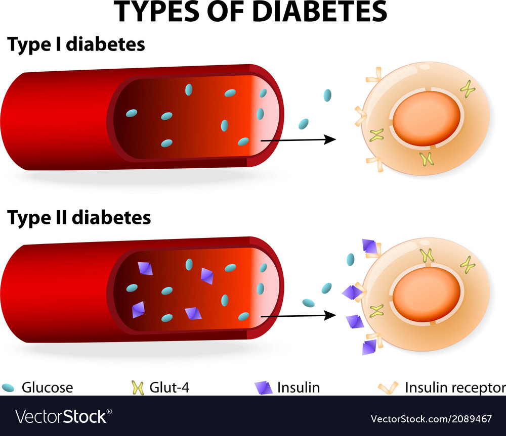 Types of diabetes vector