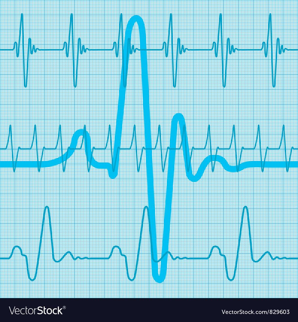 Cardiogram vector | Price: 1 Credit (USD $1)