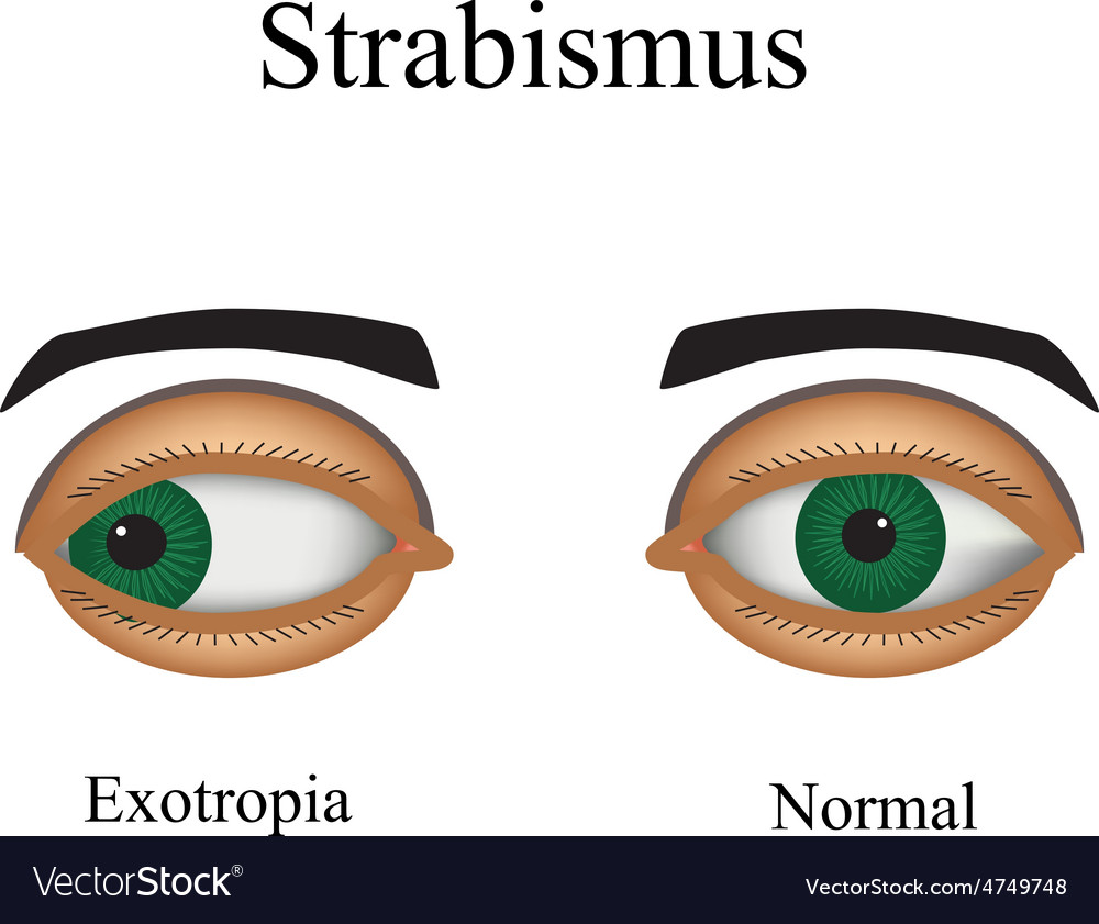 Diseases of the eye - strabismus a variation of vector | Price: 1 Credit (USD $1)