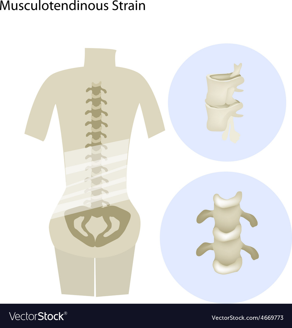 Musculotendinous strain or lumbar vector | Price: 1 Credit (USD $1)