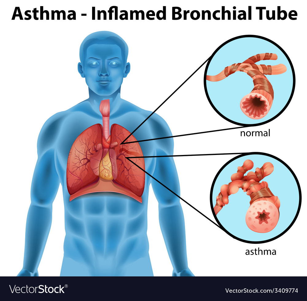 Asthma-inflamed bronchial tube vector | Price: 1 Credit (USD $1)