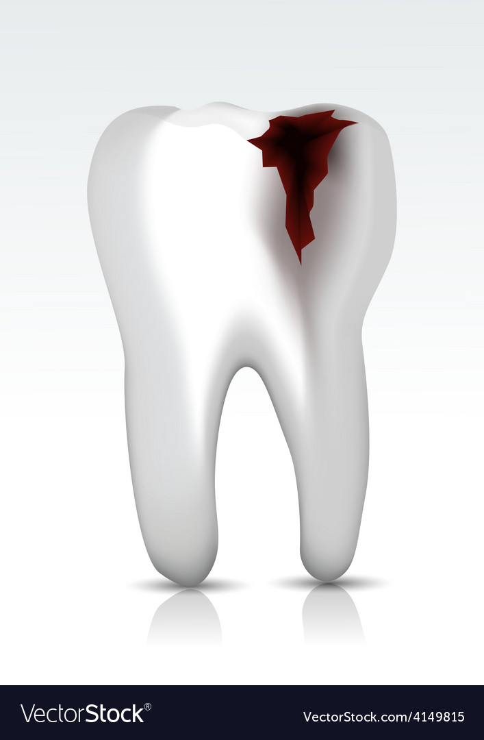 Decayed teeth vector | Price: 1 Credit (USD $1)