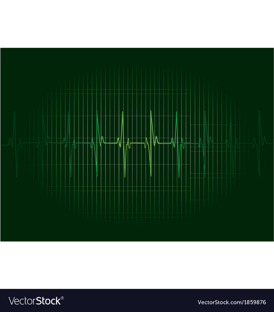 Ekg vector | Price: 1 Credit (USD $1)