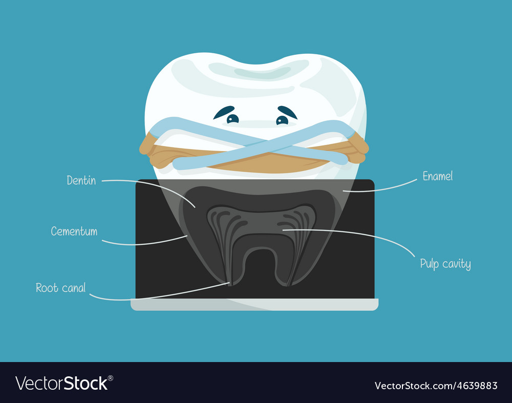 Root canal dental vector | Price: 1 Credit (USD $1)