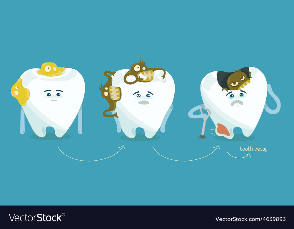 Decay tooth step by step vector | Price: 1 Credit (USD $1)