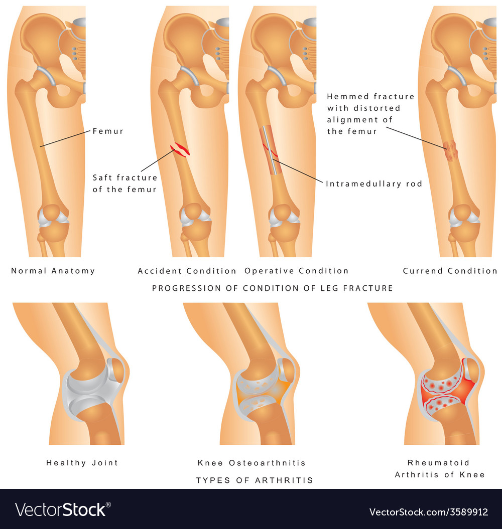 Fractures of femur vector | Price: 1 Credit (USD $1)