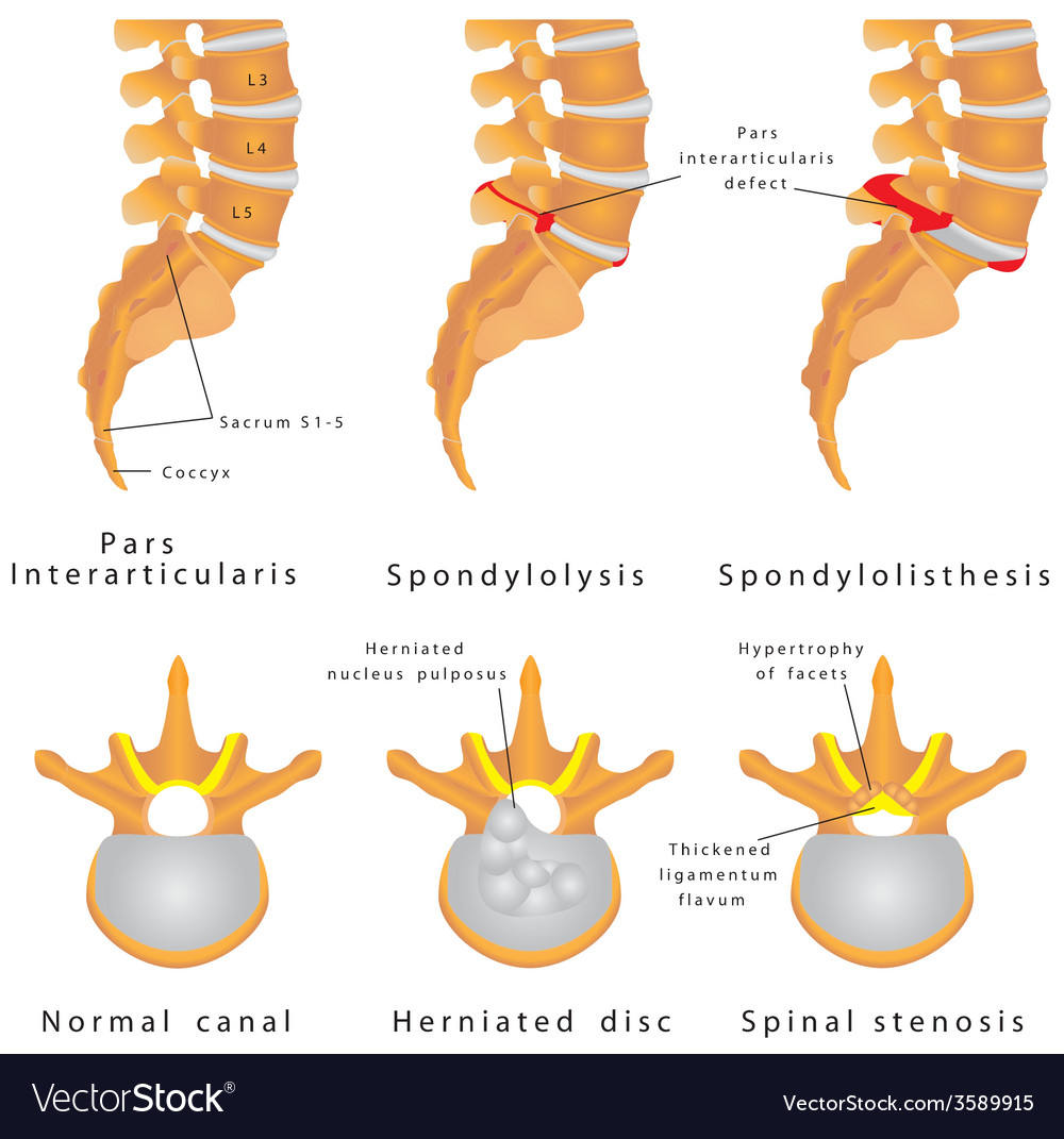 Spine fracture vector | Price: 1 Credit (USD $1)