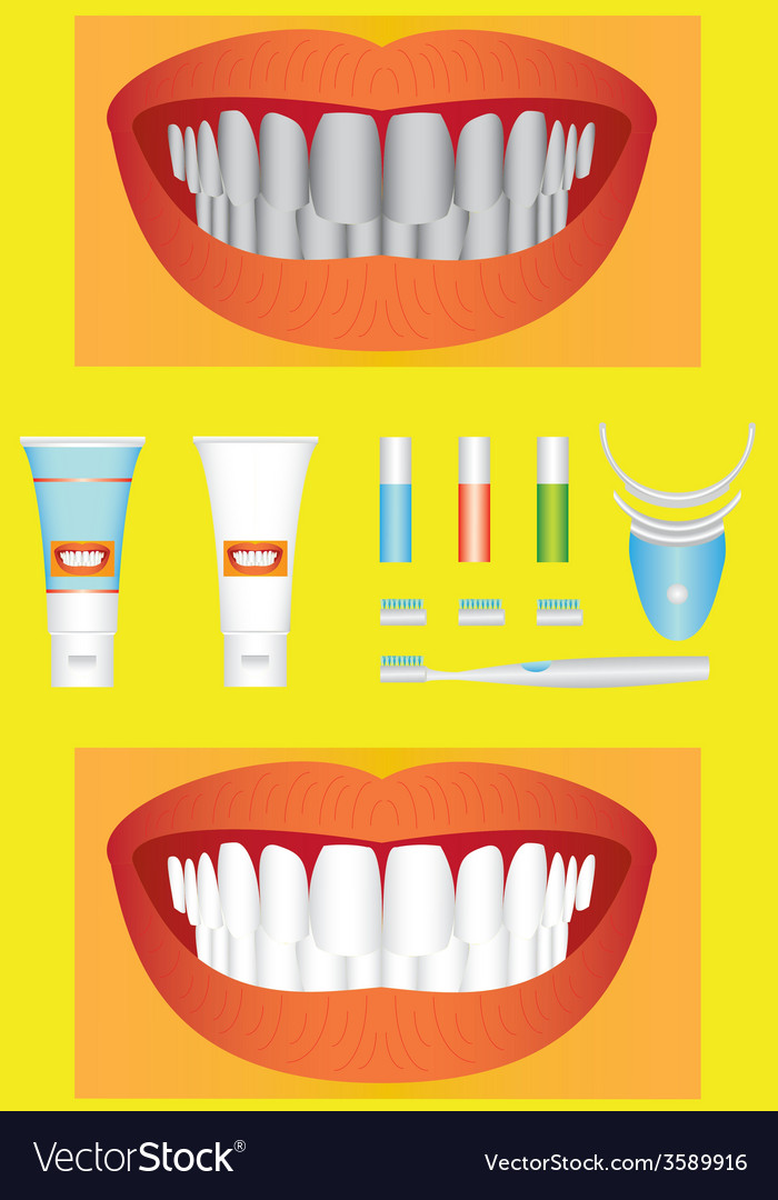 Bleaching of teeth vector | Price: 1 Credit (USD $1)
