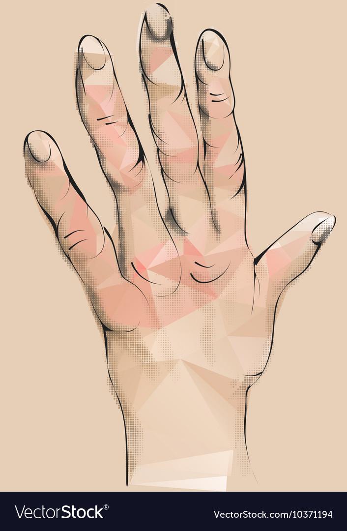 Arthritis vector image