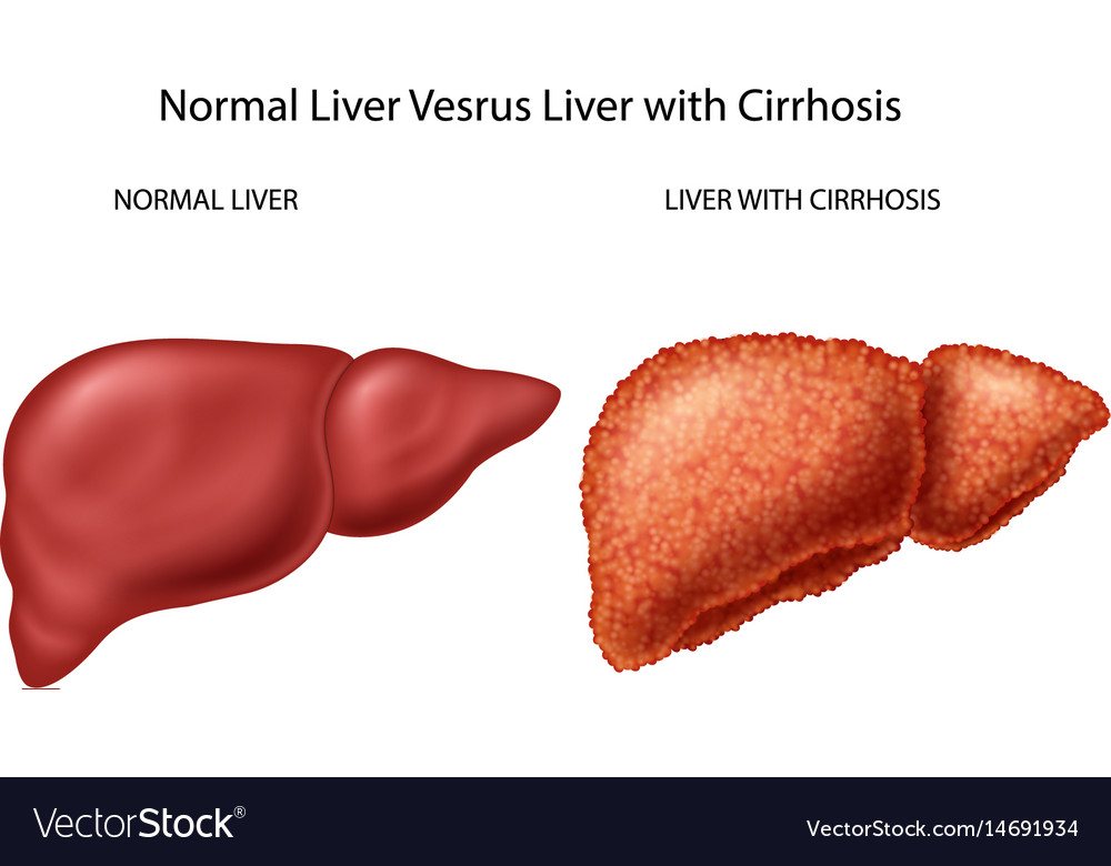 Normal liver versus liver with cirrhosis vector image