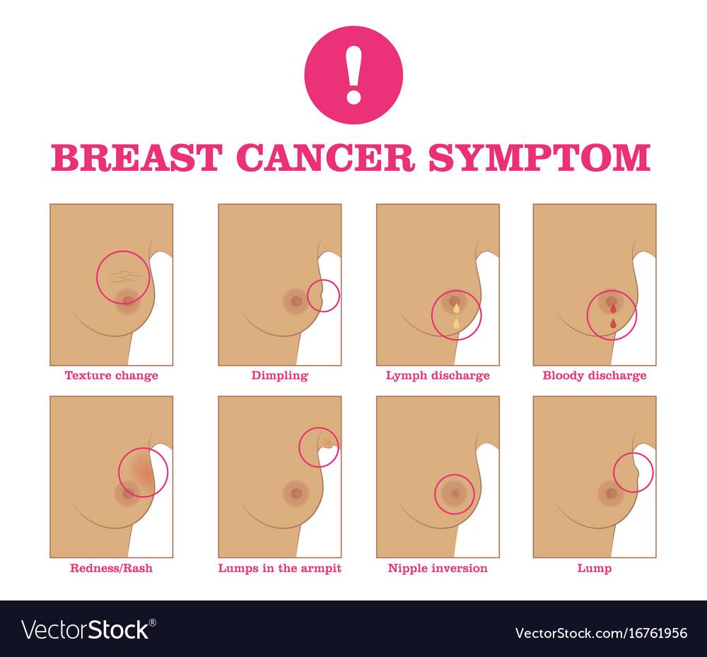Breast cancer symptom vector image
