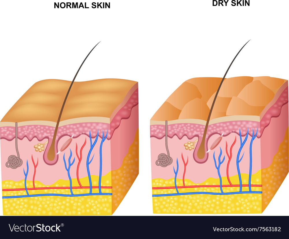 Cartoon of the layers normal skin and dry ski vector image pooptronica Choice Image