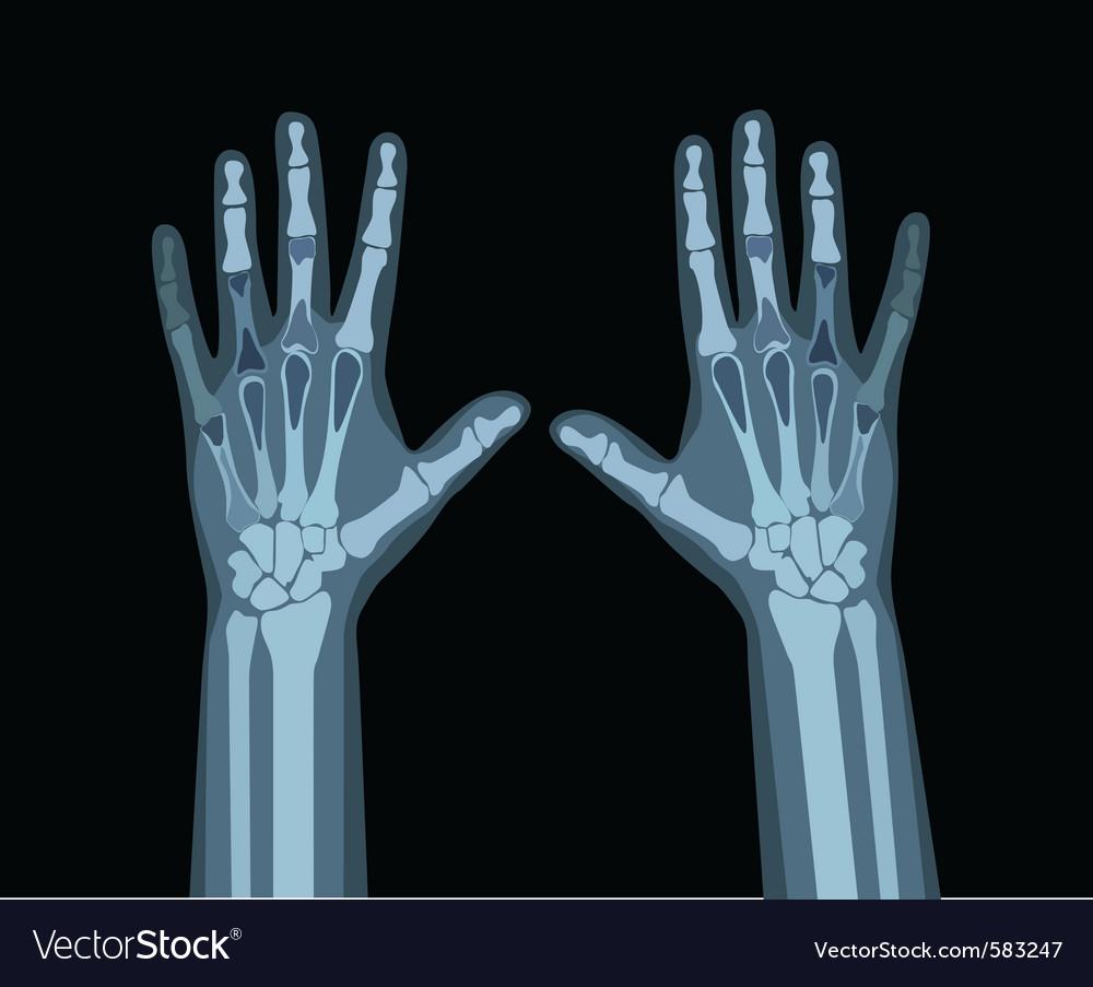 Xray hands vector image