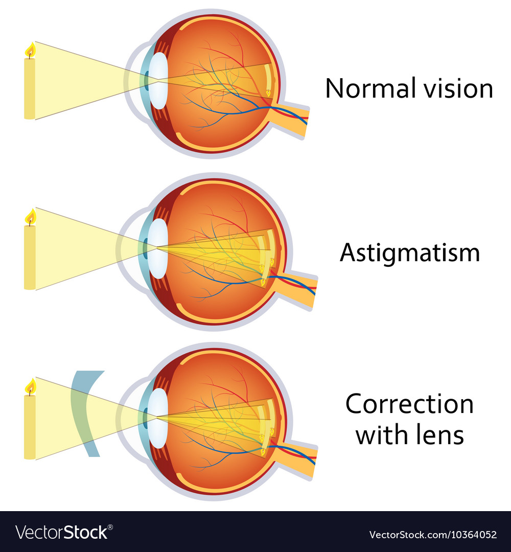 Astigmatism corrected by a cylindrical lens vector image