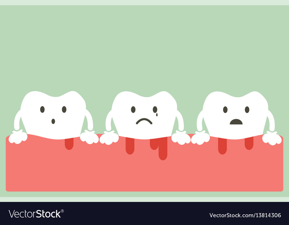 Gingivitis and bleeding vector image