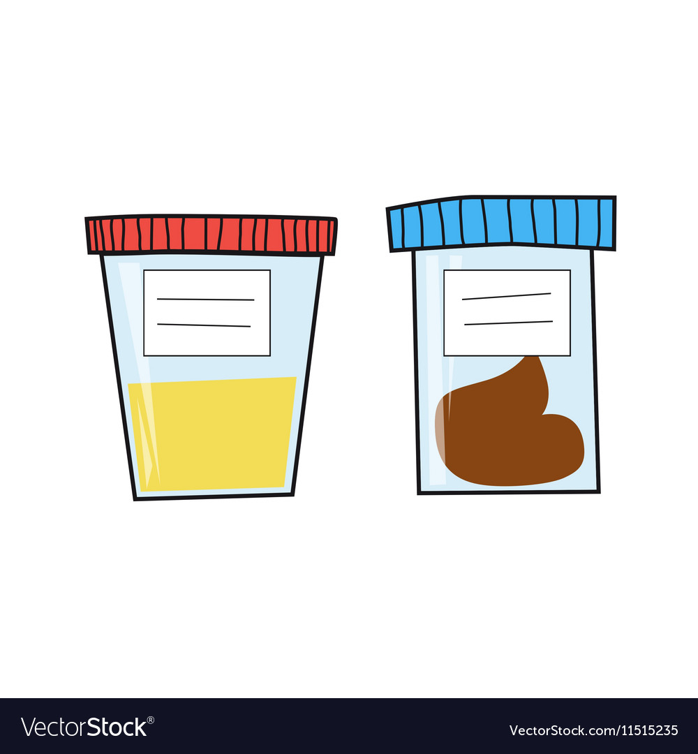 Set of popular medical tests urine and fecal analy vector image