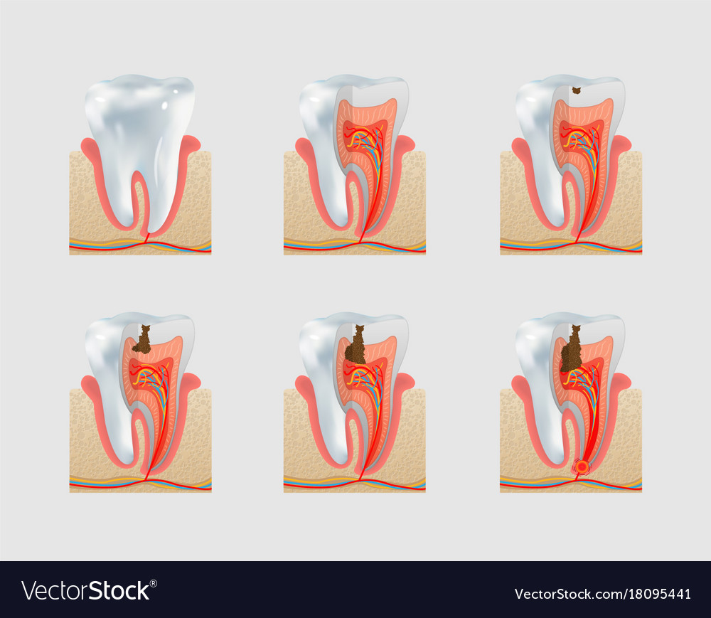 Healthy tooth and dental caries icon set vector image