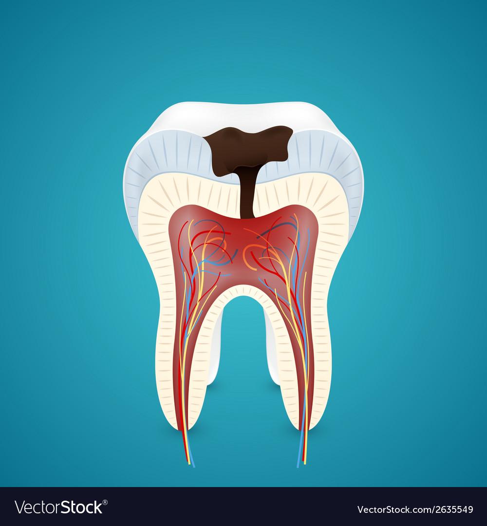 Teeth caries in cutaway vector image