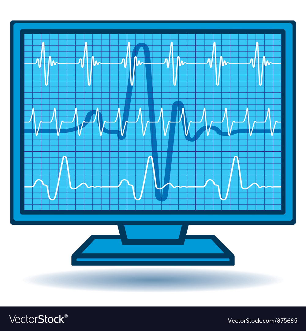 Cardiogram monitor vector image