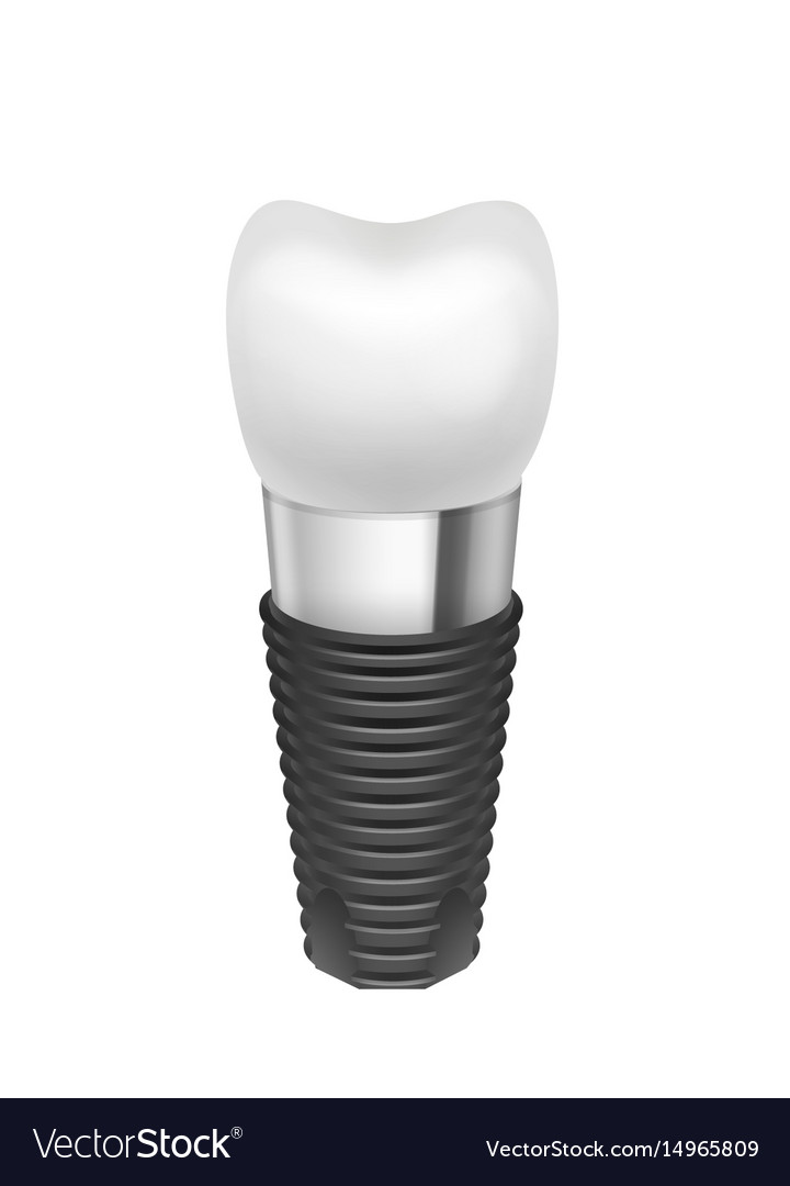 Metal assembled tooth implant vector image