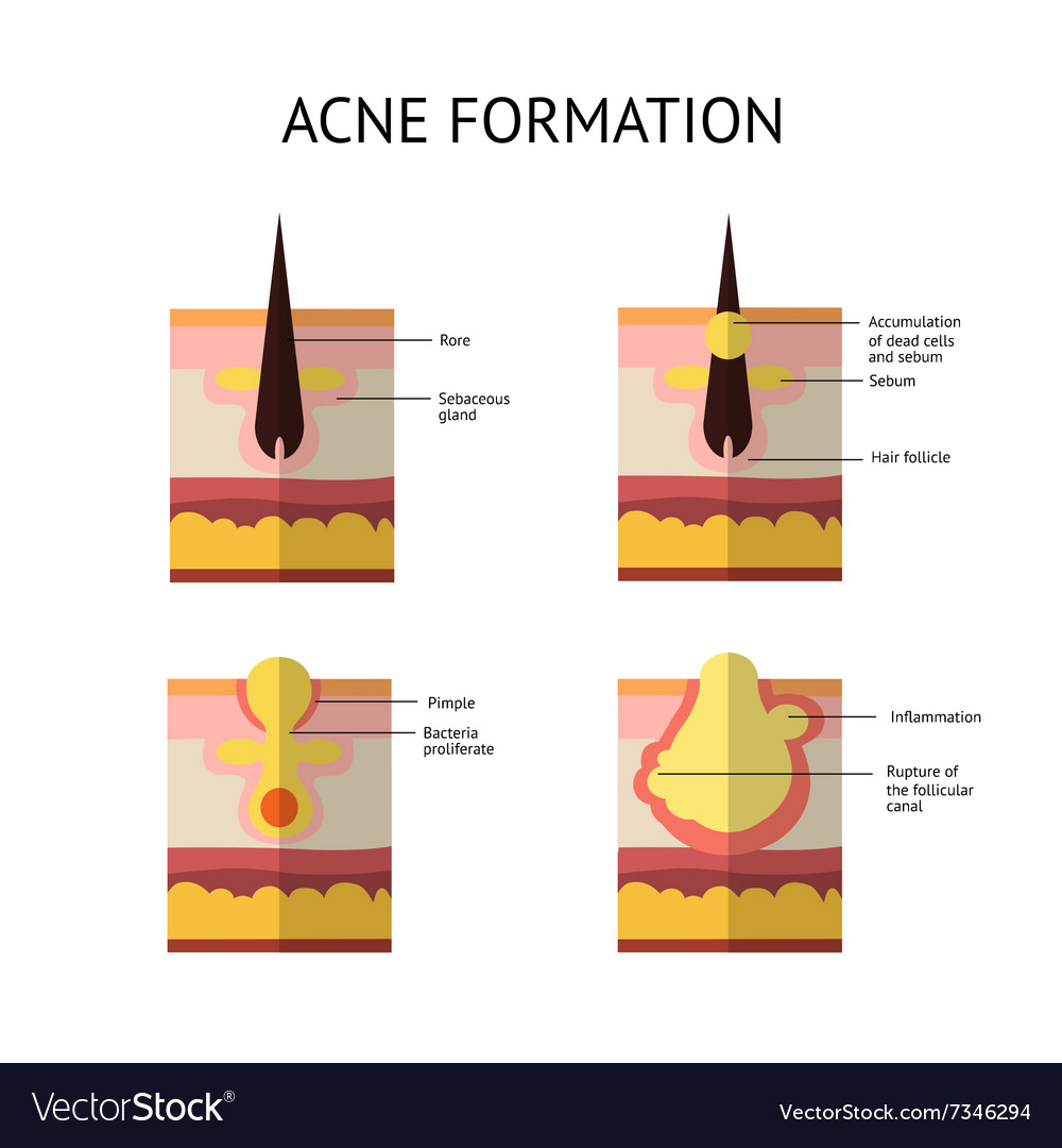 Formation of skin acne or pimple The sebum in the vector image