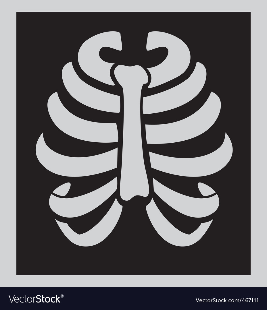X-ray chest vector image