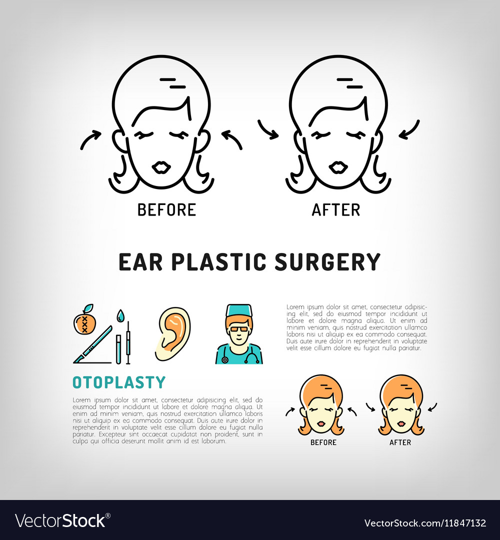 Otoplasty Ear Plastic Surgery logos Face cosmetic vector image