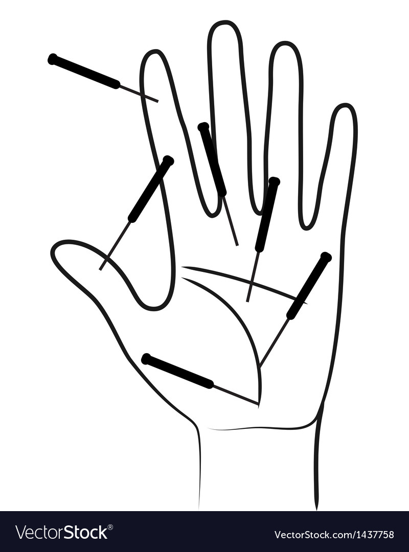 Acupunctured hand vector image