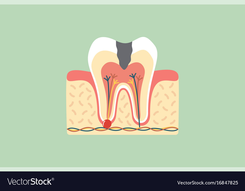 Decay Tooth Anatomy Structure Royalty Free Vector Image