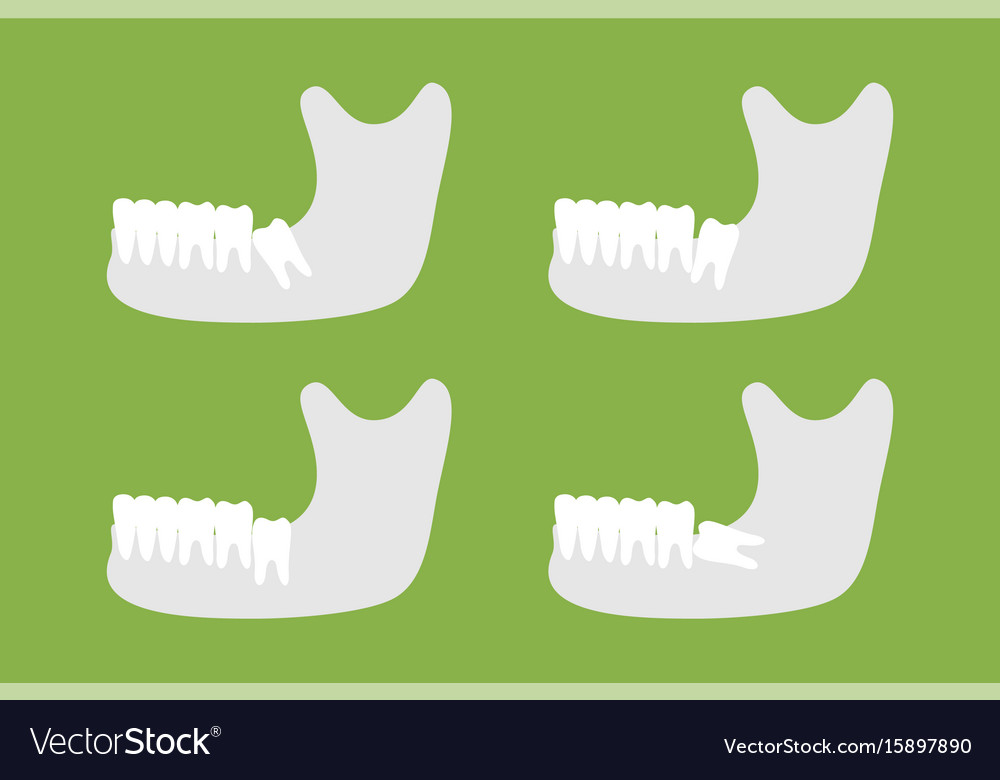 Set of type of wisdom tooth with mandible vector image