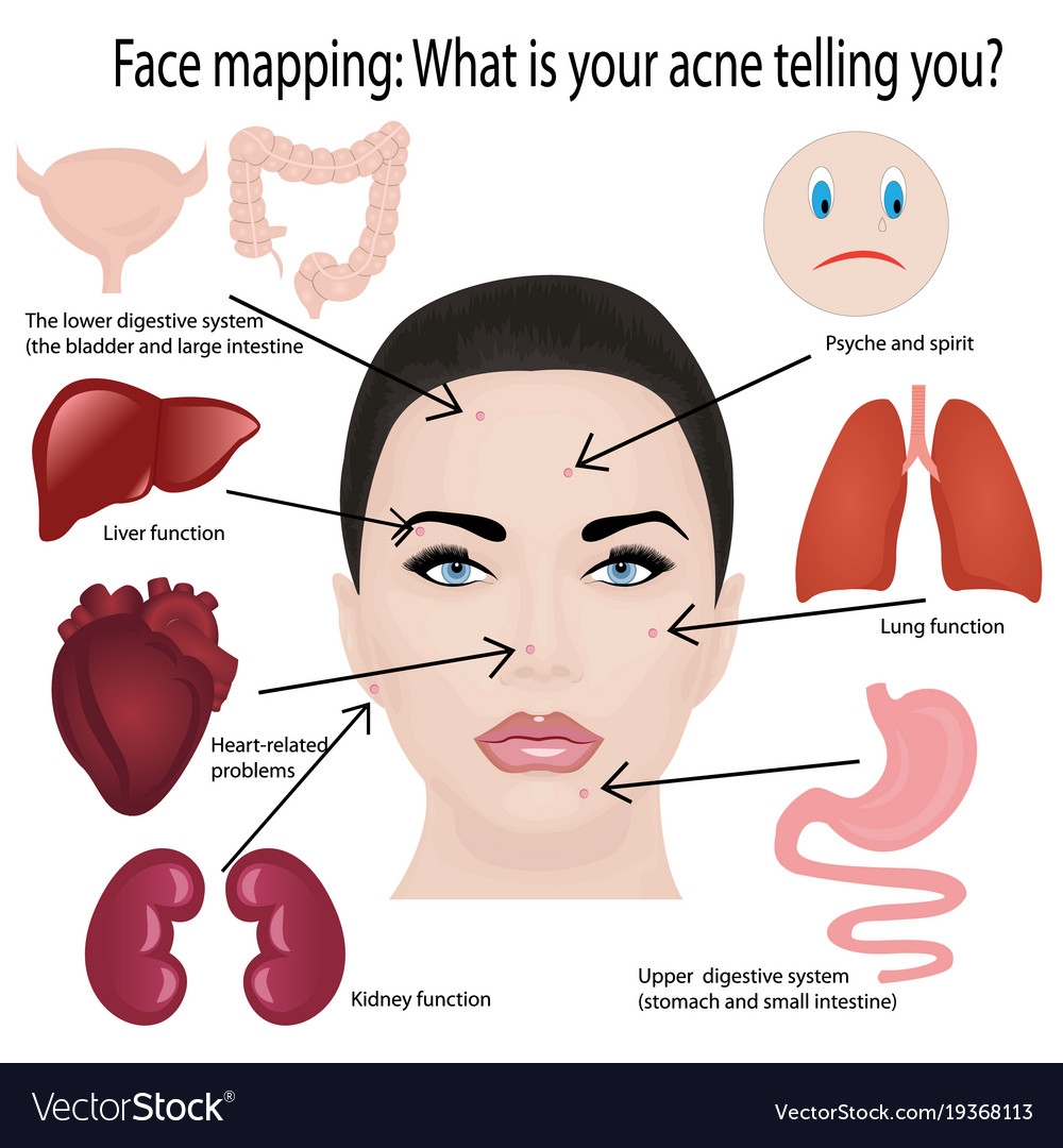 Cystic acne diagram images diagram design ideas acne diagram of the face image collections diagram design ideas face mapping what acne telling you pooptronica Image collections
