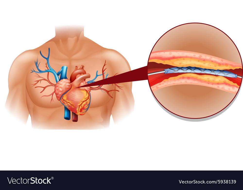 Human heart diagram with balloon tube vector image