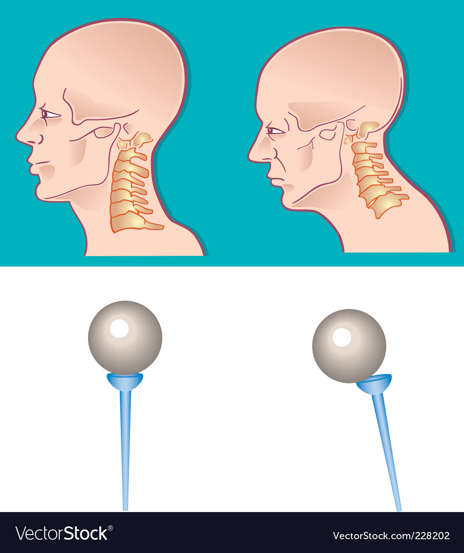 Neck spine vector image