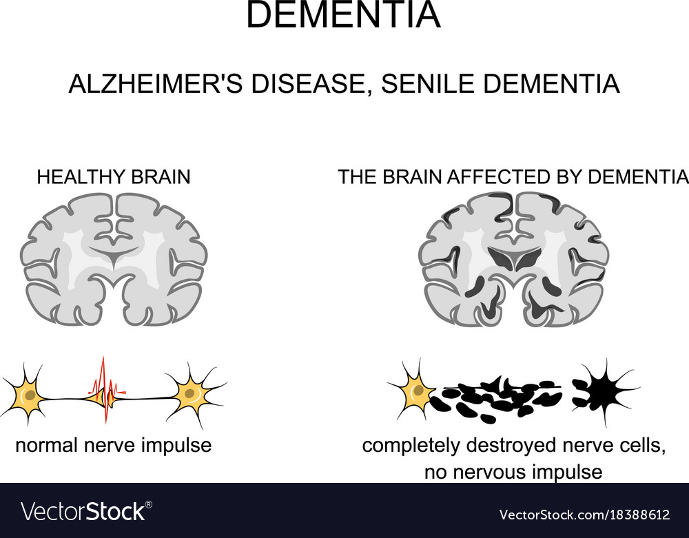 senile dementia Symptoms of dementia vary depending on the cause and the area of the brain that is affected memory loss is usually the earliest and most noticeable symptom.